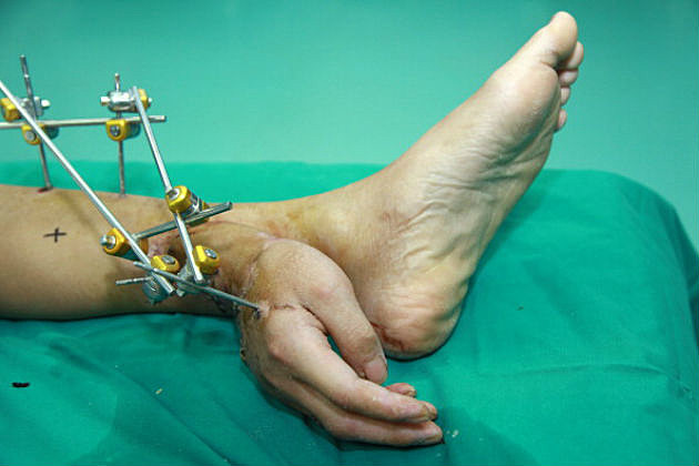 severed hand attached to ankle